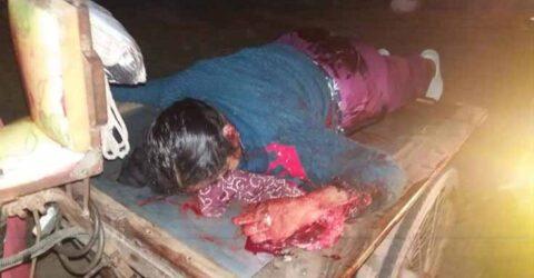 পাটকেলঘাটায় মোটরসাইকেল থেকে ছিটকে স্ত্রী নিহত, স্বামী আহত